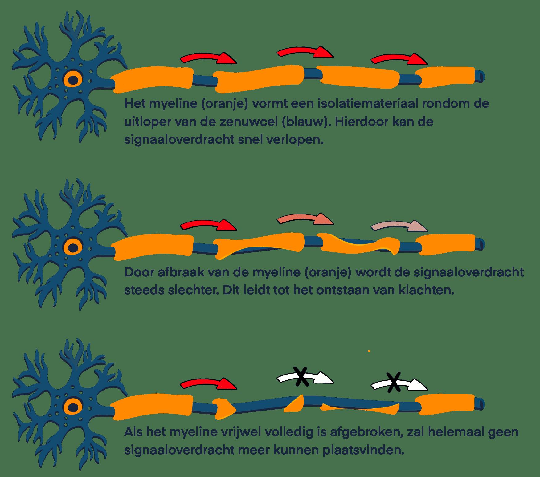 een grafische weergave van 3 zenuwcellen met een myeline laag die beschadigd waardoor signaaloverdracht verslechterd en zelfs niet meer plaatsvindt