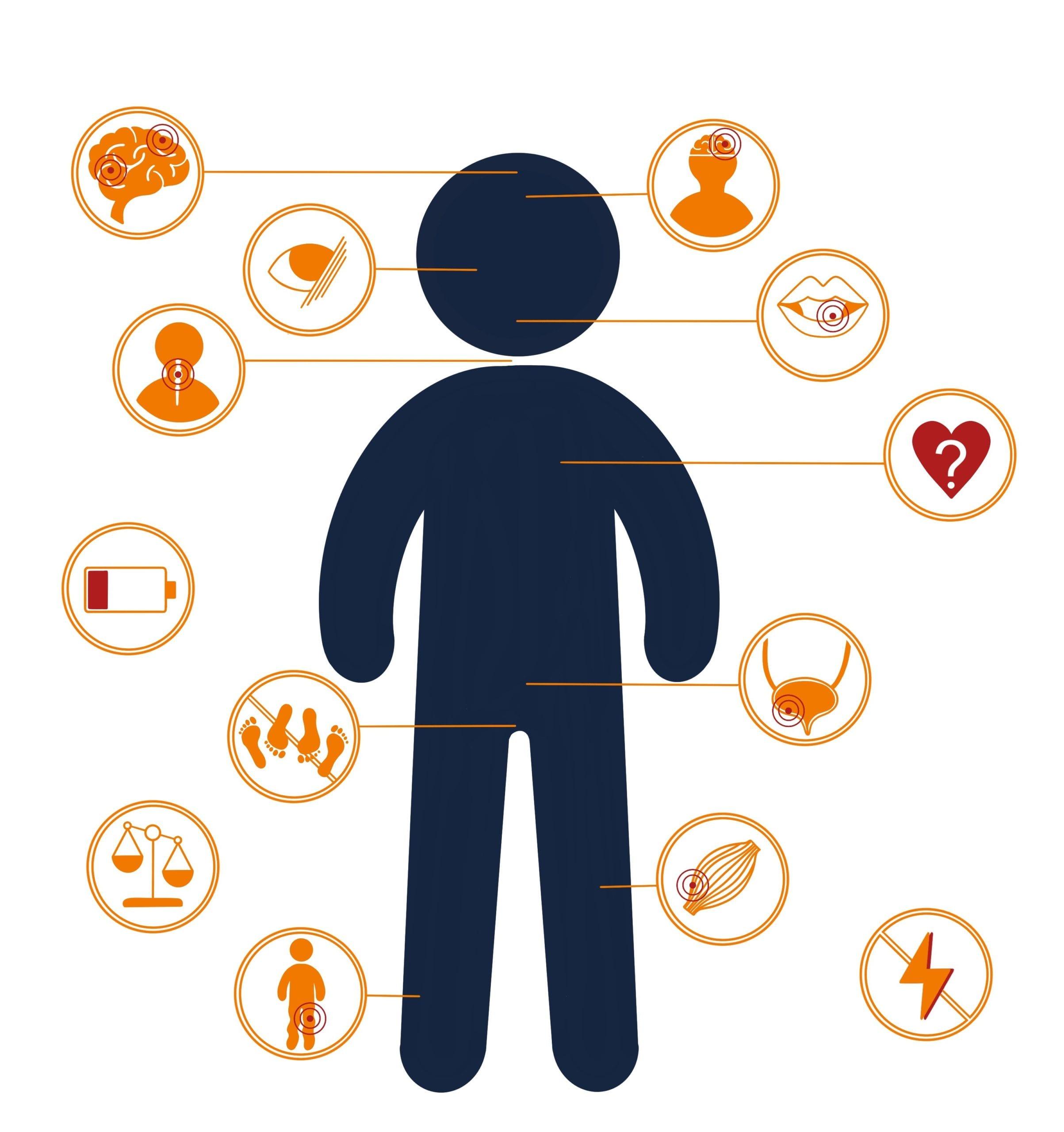 symptomen van MS weergegeven in een graphic waarbij een blauw poppetje omringt wordt door 13 oranje symbooltjes